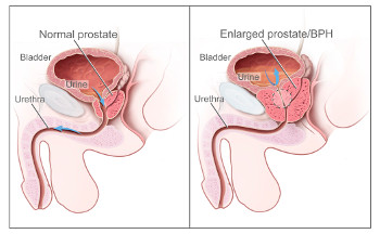 ED Causes - Prostate enlargement