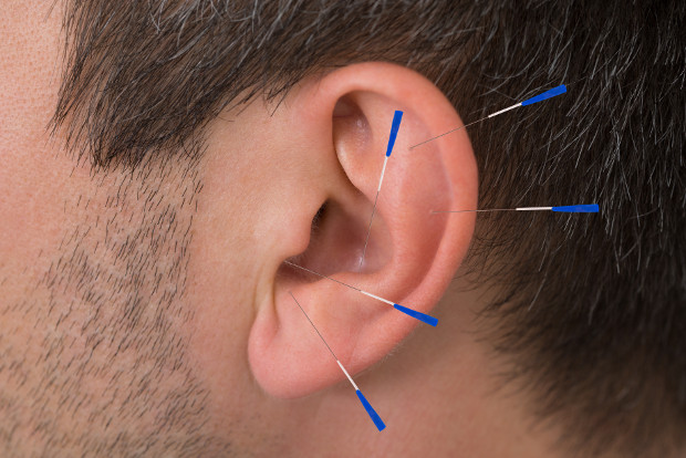 Acupuncture For ED - Ear Acupuncture For Erectile Dysfunction